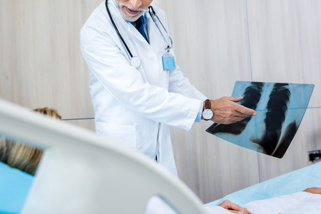 partial view of male doctor pointing at x-ray picture to female patient in hospital room