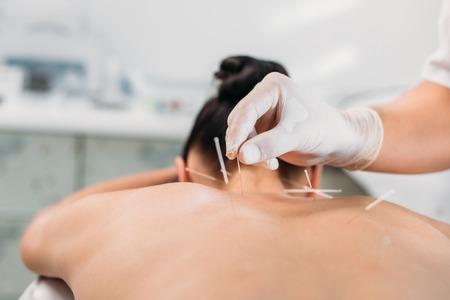 Captura recortada de cosmetóloga poniendo agujas en la espalda de la mujer durante la terapia de acupuntura en el salón de spa