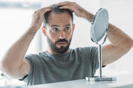 uomo di mezza età barbuto con alopecia che guarda allo specchio, concetto di perdita di capelli