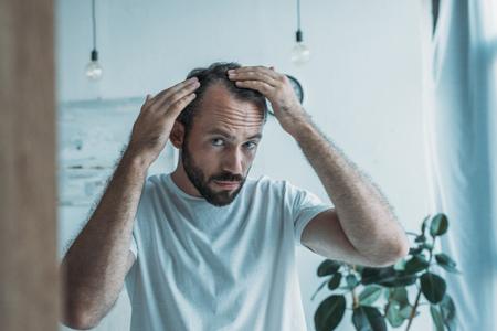 metà uomo adulto con alopecia guardando allo specchio, concetto di perdita di capelli
