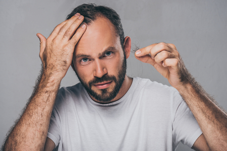 bearded middle aged man holding fallen hair and looking at camera isolated on grey Archivio Fotografico