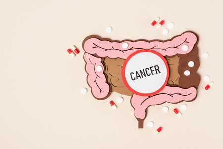 Top view of human large intestine, various pills and lettering cancer on beige background Фото со стока