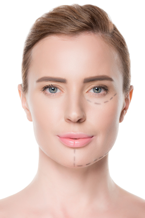 Portrait of woman with painted lines on face for plastic surgery isolated on white background Stock fotó