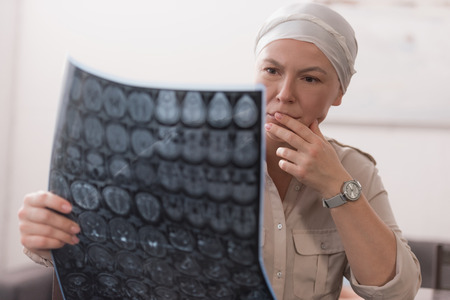 serious sick mature woman in kerchief holding mri scan Archivio Fotografico