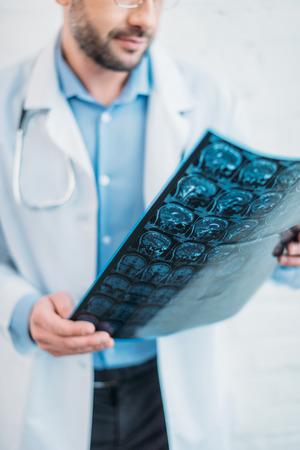 Cropped shot of doctor examining MRI scan