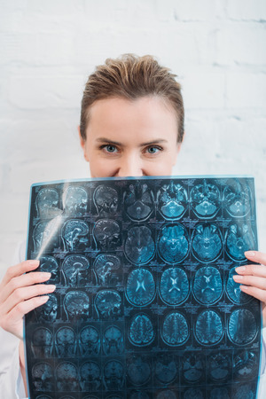 Female doctor covering half of face with MRI scan Zdjęcie Seryjne