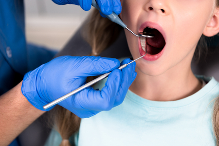 cropped shot of dentist with instruments examining teeth of little child Foto de archivo