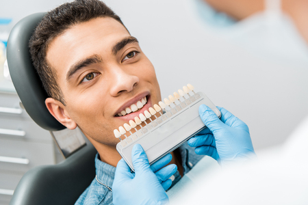 close up of handsome african american man smiling near teeth color palette before whitening procedure Stock Photo