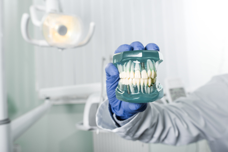 cropped view of dentist in latex glove holding teeth model 写真素材 - 117437550
