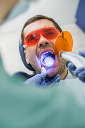 selective focus of patient with opened mouth during bleaching procedure near dentist Banco de Imagens