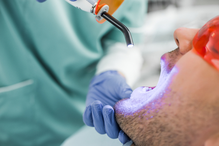 close up of dentist making bleaching procedure to patient Banco de Imagens