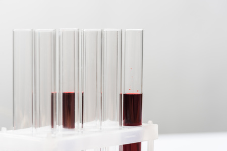Test tubes with blood on grey background Stock Photo