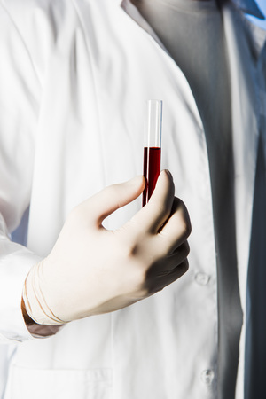 Cropped view of doctor in medical glove holding test tube with blood Stock Photo