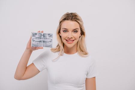 beautiful woman in t-shirt holding teeth x-ray isolated on white Zdjęcie Seryjne