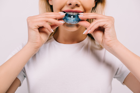 cropped view of woman in white t-shirt putting on orthodontic trainer dental braces isolated on white Standard-Bild - 119061219