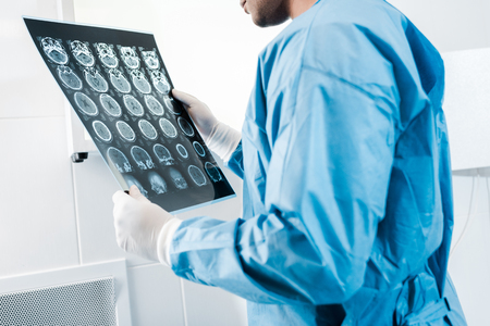 Partial view of doctor in uniform holding x-ray in clinic