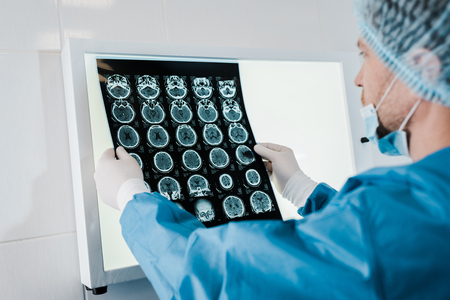 selective focus of doctor in medical cap and latex gloves holding x-ray in clinic