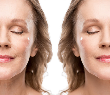Collage of mature woman with cosmetic cream on face before and after retouching isolated on white background