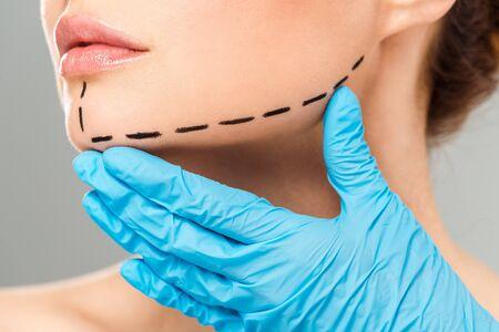 Ausgeschnittene Ansicht eines plastischen Chirurgen, der das Gesicht einer Frau mit markiertem Gesicht auf grauem Hintergrund berührt