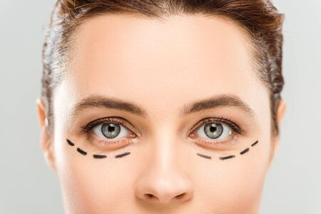 Cropped view of woman with marks on face isolated on grey background