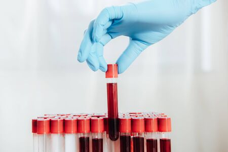 Cropped view of doctor in latex glove holding test tube with blood