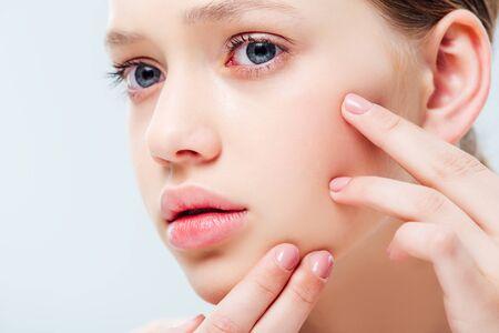 Vista de cerca de una adolescente disgustada que tiene acné en la cara aislado en gris