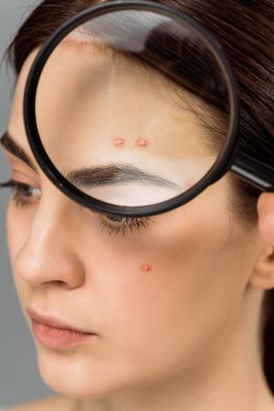 brunette young woman with magnifying glass near face with acne isolated on grey