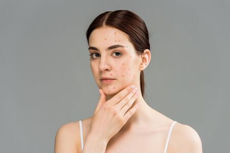 beautiful young woman with pimples touching face isolated on grey Standard-Bild
