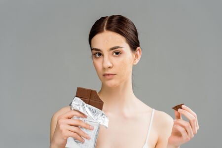 young woman with problem skin holding chocolate bar and looking at camera isolated on grey