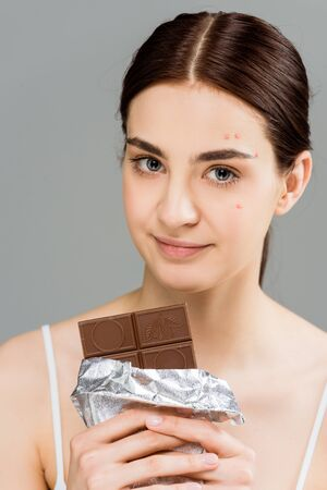 young brunette woman with acne on face holding chocolate bar isolated on grey
