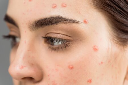 close up of woman with pimples on face isolated on grey 스톡 콘텐츠