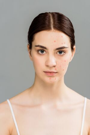 woman with acne on face looking at camera isolated on grey
