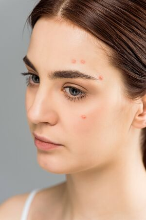 upset young woman with acne on face isolated on grey