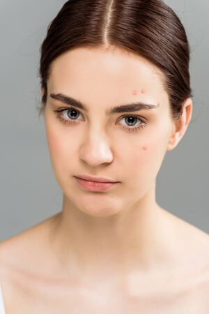 upset young brunette woman with acne on face isolated on grey 스톡 콘텐츠