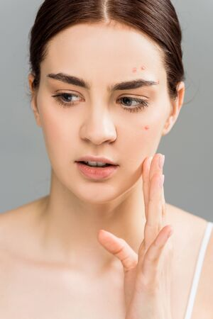 attractive young brunette woman with acne touching face isolated on grey