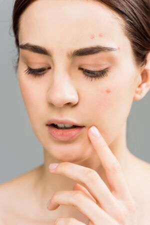 close up of attractive young brunette woman with acne touching face isolated on grey Stockfoto