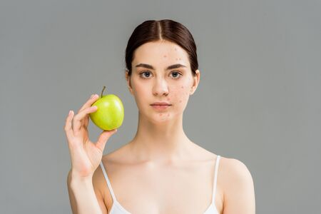 young woman with pimples on face holding green apple isolated on grey