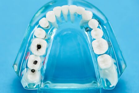 selective focus of teeth model with dental caries on blue 写真素材
