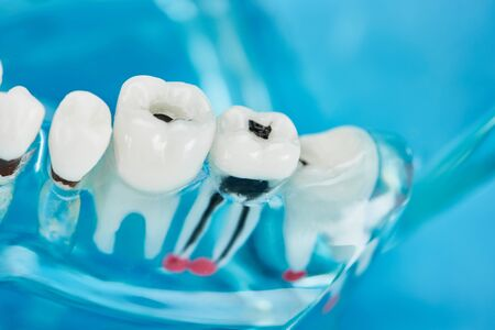 selective focus of teeth model with dental caries in white teeth on blue