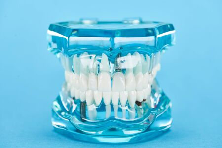 selective focus of teeth model with healthy jaw and white teeth on blue