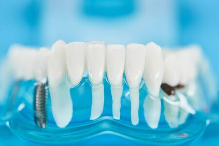close up of teeth model with dental roots in white teeth on blue Imagens