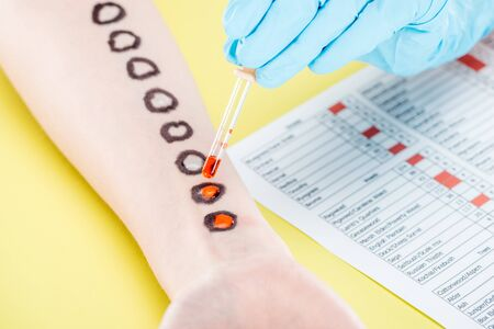 cropped view of doctor examining allergic reaction near allergy test results on yellow