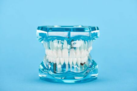 selective focus of teeth model with white teeth isolated on blue Imagens