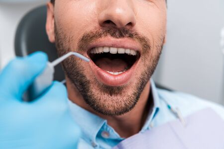 cropped view of woman holding dental instrument near man with opened mouth