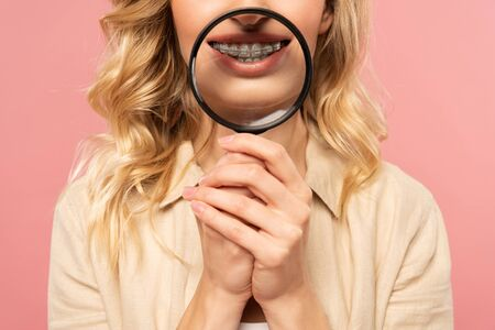 Cropped view of woman with dental braces holding magnifying glass isolated on pink