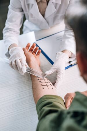 overhead of allergist in latex gloves holding ruler near marked hand on man in clinic