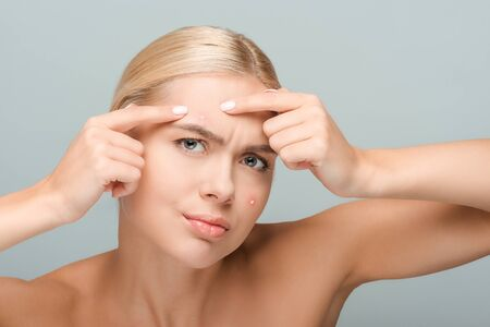 displeased girl pointing with fingers at face with acne isolated on grey