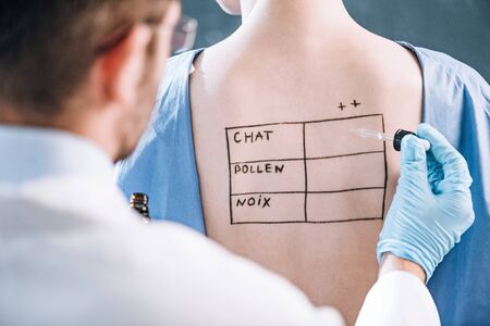 selective focus of allergist holding pipette near woman with letters on marked body