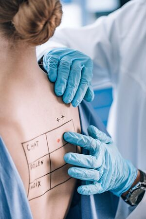 cropped view of allergist touching back of patient with lettering and mark