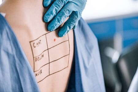 cropped view of allergist touching back of woman with lettering and mark